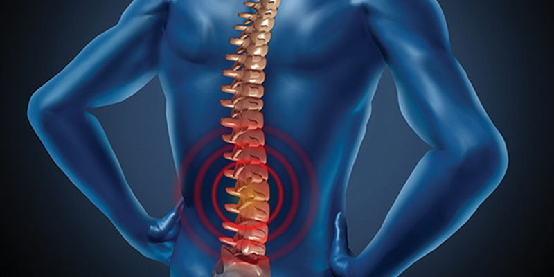 Back to Basics: Reducing Workplace Back Injuries